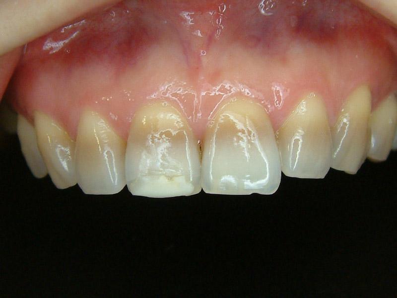 前牙貼片-牙齒變色-1
