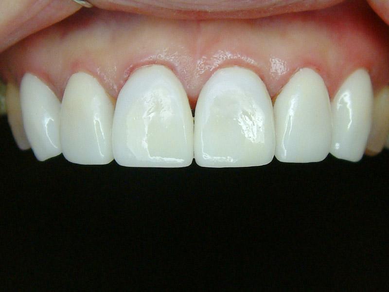 前牙貼片-牙齒變色-2