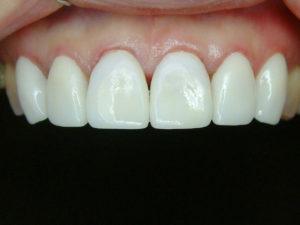 前牙貼片-牙齒變色-demo