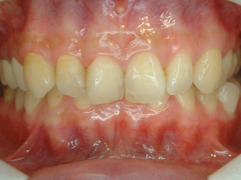 前牙貼片6-1