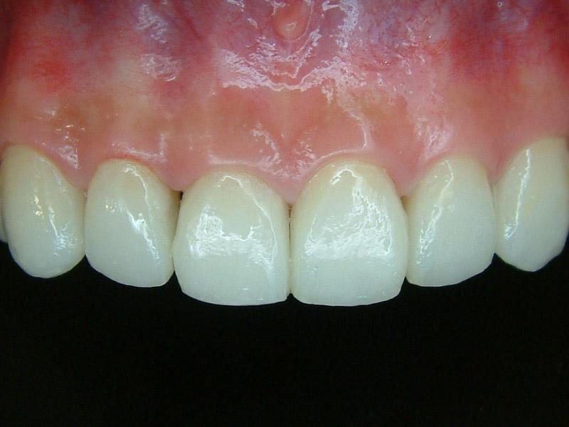 前牙貼片6-2
