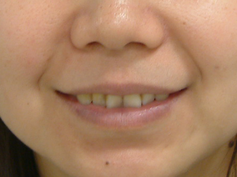 前牙貼片6-3