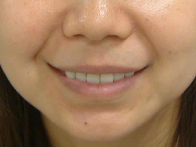 前牙貼片6-4