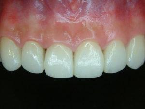 前牙貼片6-demo